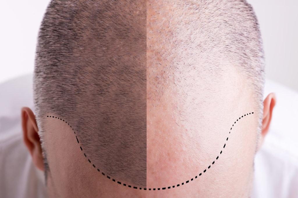 Corso di Dermopigmentazione e Micropigmentazione - Livello 5 Tricopigmentazione
